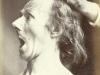 expression-visage-electricite-duchenne-boulogne-07