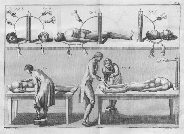 Experiments_with_cadavers_and_severed_heads_Essai_theorique_et_experimental_sur_le_galvanisme_1804